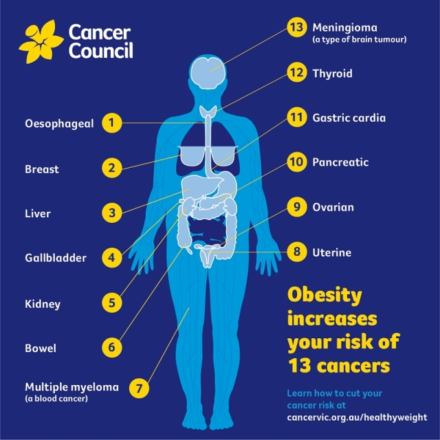 Which cancers are linked to weight?